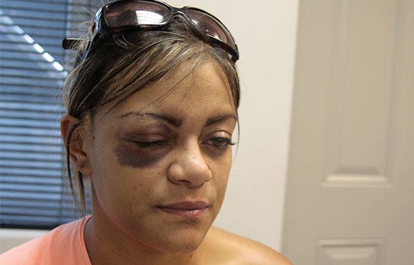 Brasileira espancada por conterrâneos pede ajuda nas redes sociais