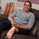 """""""Eles teriam que implantar o meu pé ao contrário devido a forma com que ele dobra, para assim funcionar como meu joelho"""", explicou Jordon"""