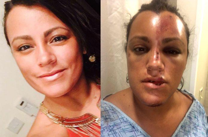 kariza Imigrante brasileira agredida pelo marido na Flórida pede justiça
