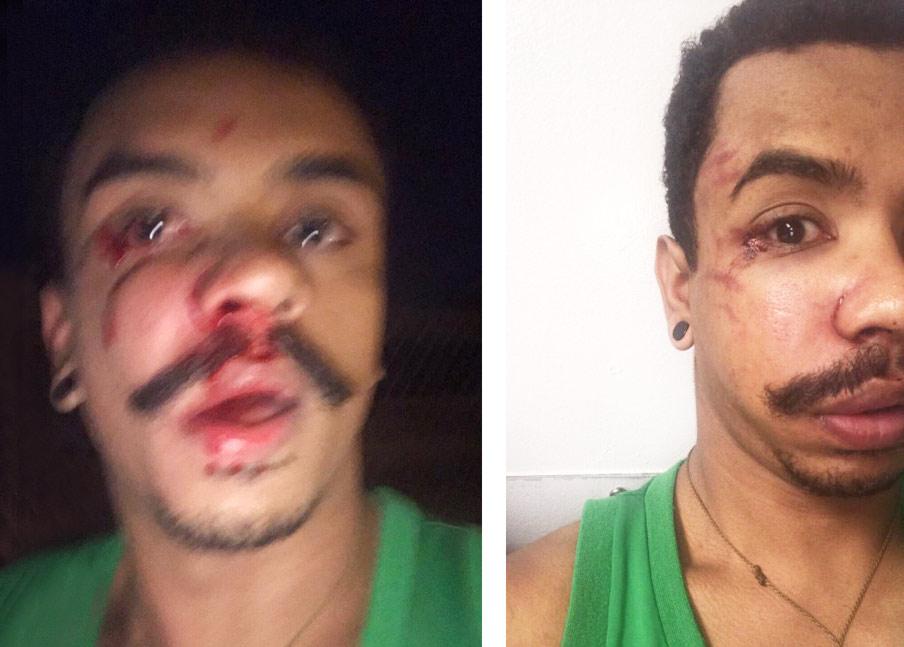henderson1 Imigrante brasileiro é roubado e espancado em Newark
