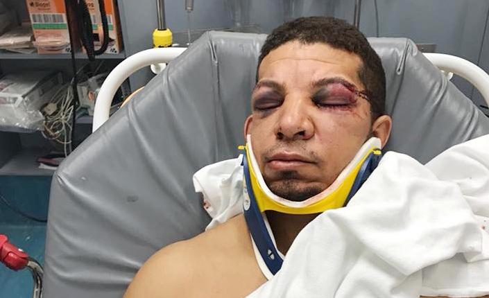 Foto20 Ademir Severo da Costa Brasileiro é espancado e roubado na ida ao trabalho no Ironbound