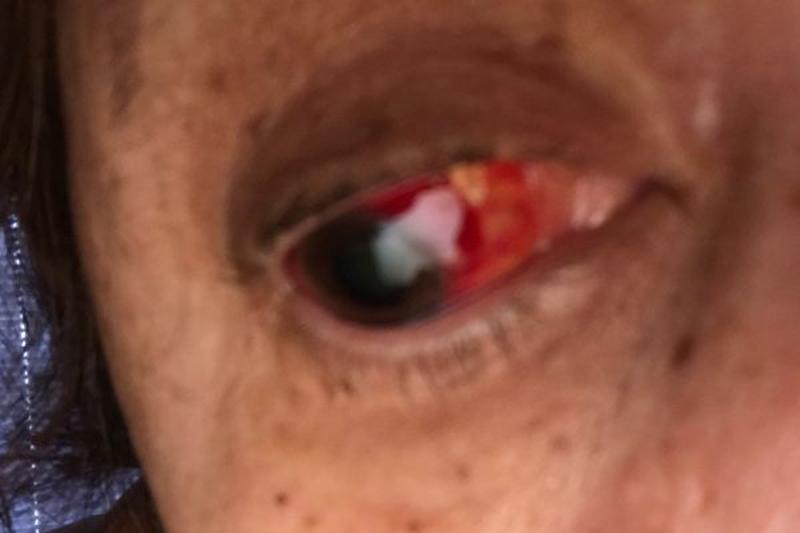 Foto1 Cleide Mara Sousa  Brasileira sofre descolamento de retina e pede ajuda