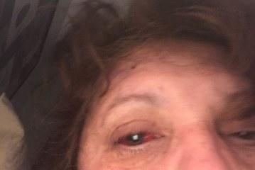 Brasileira sofre descolamento de retina e pede ajuda