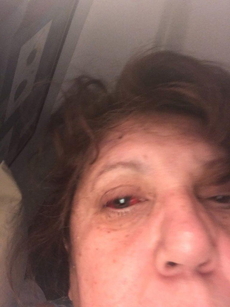 Foto1 Cleide Mara Sousa 769x1024 Brasileira sofre descolamento de retina e pede ajuda