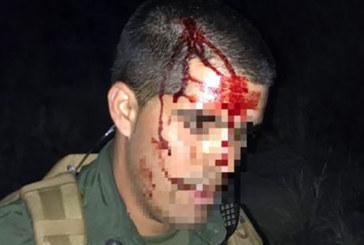 Imigrante dá pedrada na cabeça de patrulheiro na fronteira