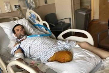 Brasileiro tem perna amputada e pede ajuda para prótese em NJ