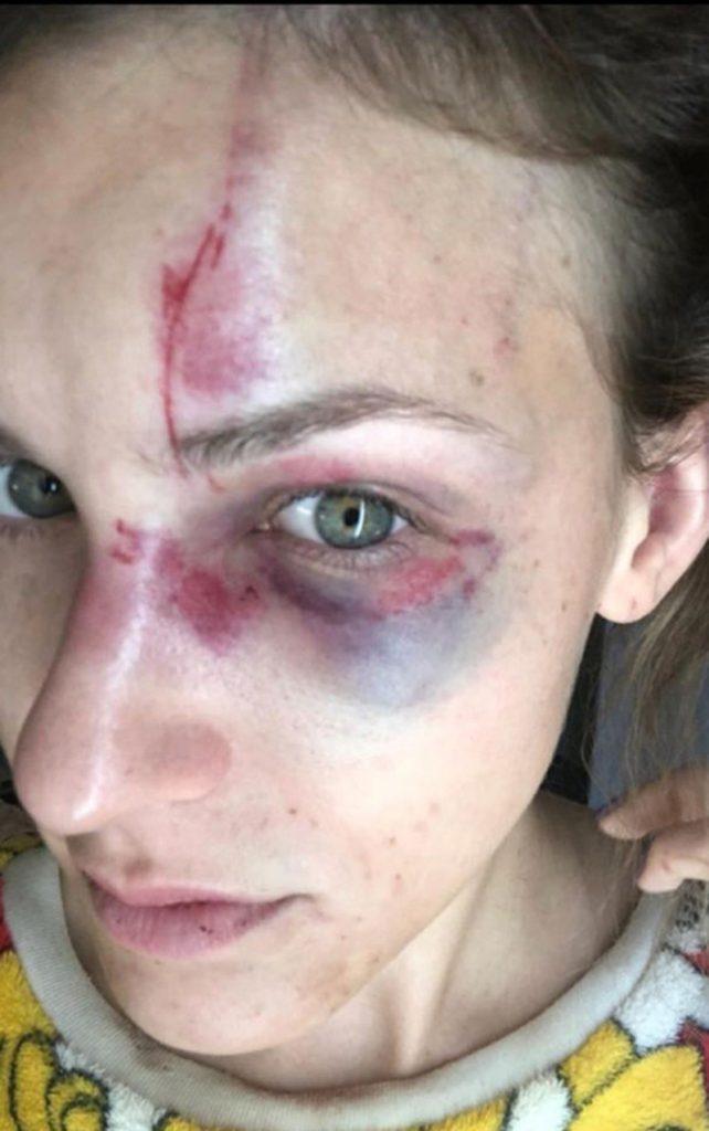 Foto1 Melissa Gentz 1 Brasileiro preso por violência doméstica é solto após pagar fiança