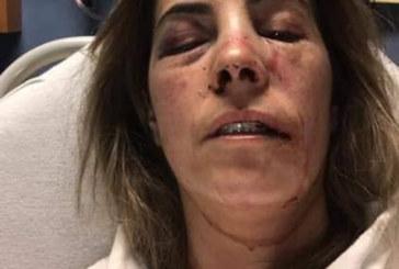 Brasileira agredida por motorista teme novo ataque em MA