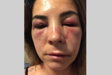 Brasileira é agredida por motorista que bloqueava entrada de garagem