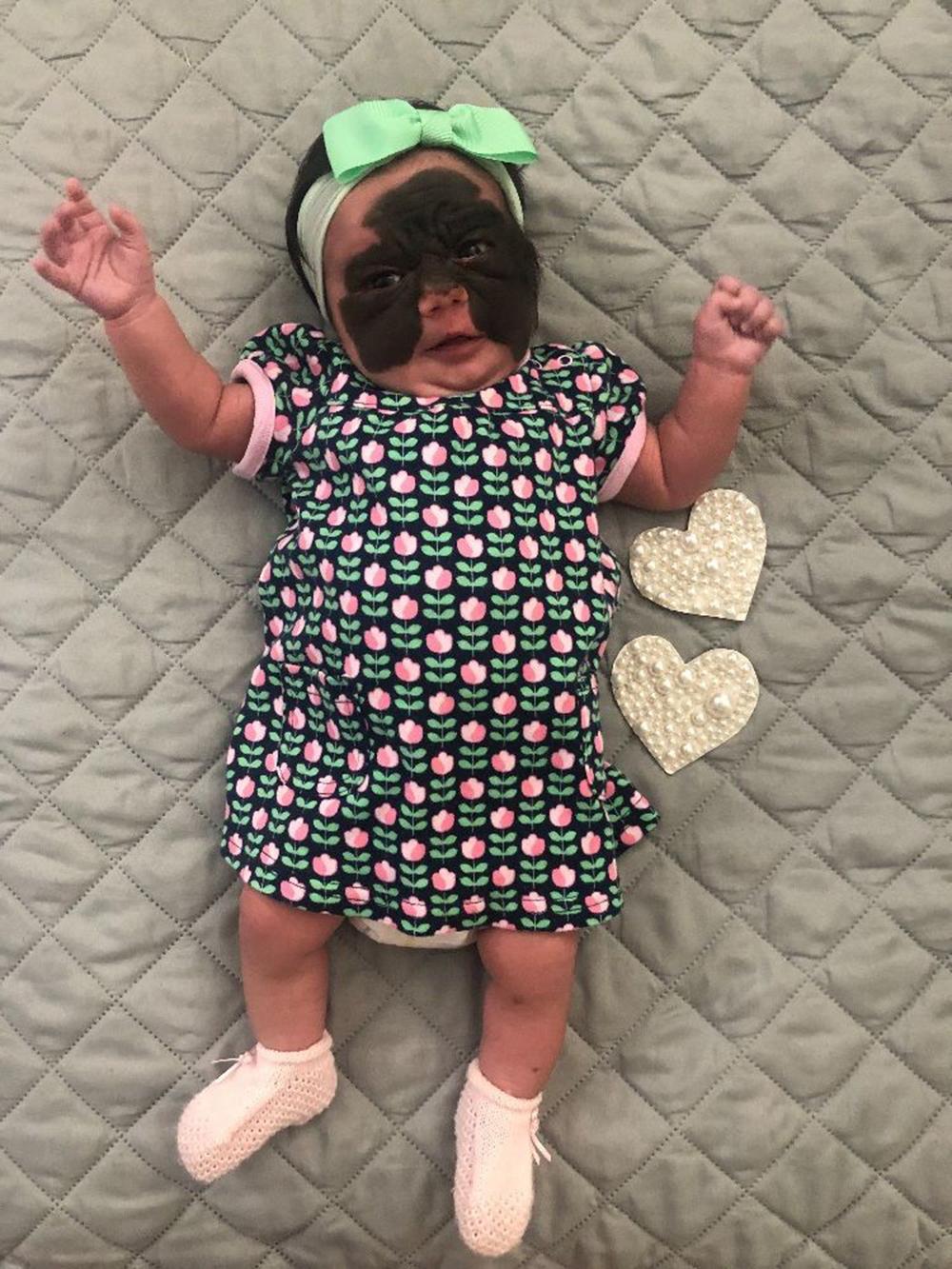 Foto2 Luna Família faz campanha para filha com condição genética rara