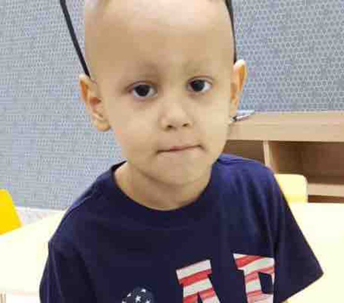 Foto3 Lorenzo Cunha Carvalho Brasileirinho luta contra câncer no maxilar