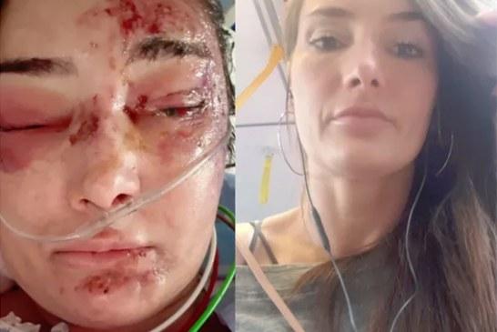 Amigos fazem campanha para brasileira atropelada por caminhão na Austrália