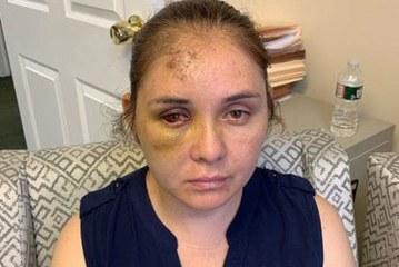 """Adolescente agride mulher e diz ao filho dela para """"voltar ao México"""""""
