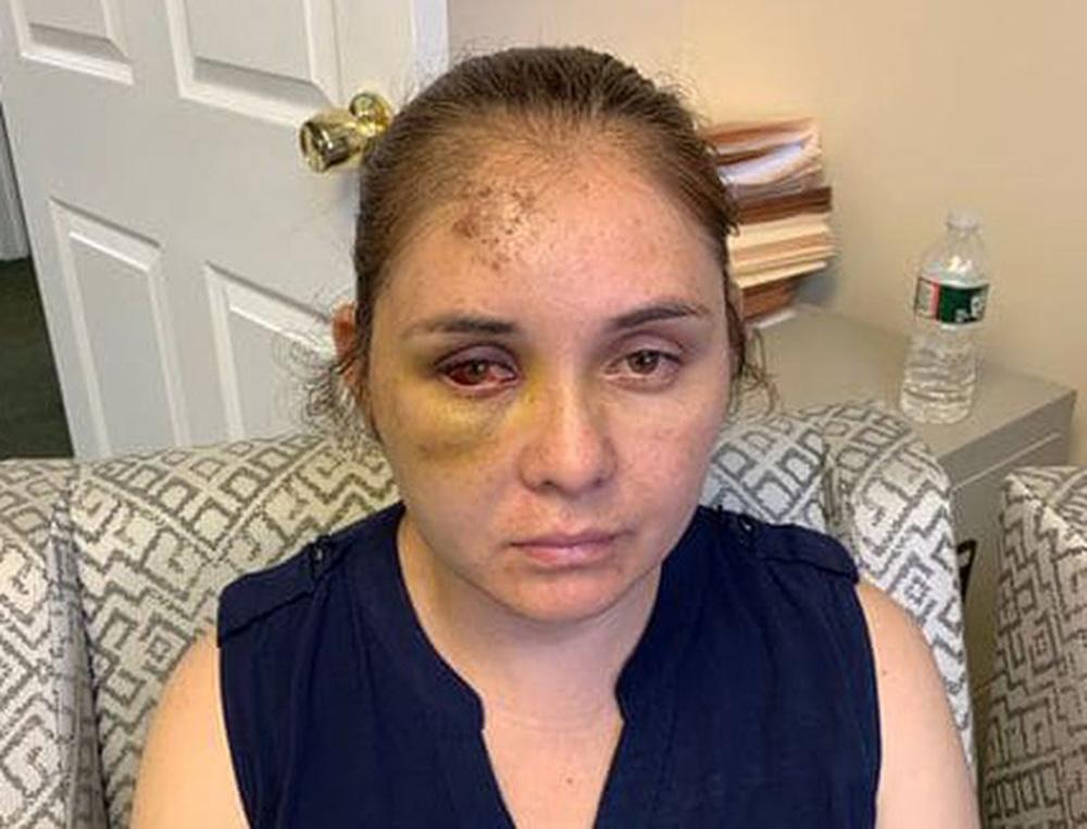 """Foto6 Beronica Ruiz Adolescente agride mulher e diz ao filho dela para """"voltar ao México"""""""