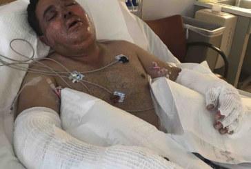 Brasileiro sofre acidente de trabalho e tem queimadura no rosto em MA