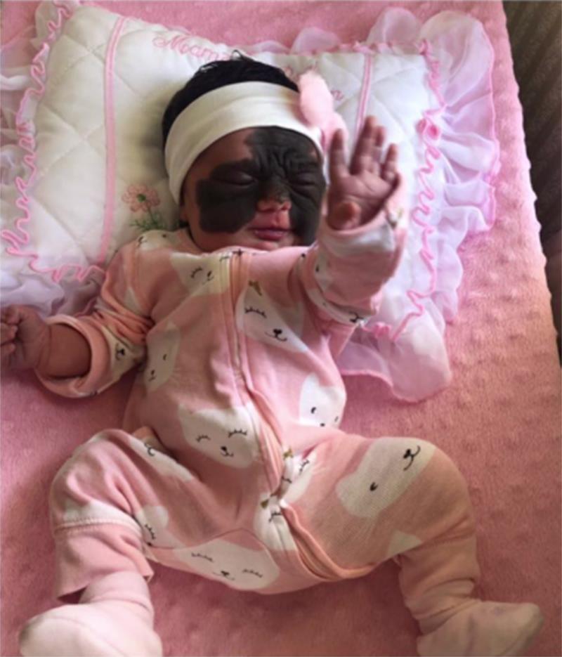 Foto4 Luna Brasileirinha terá cirurgia para retirada de condição rara na Rússia