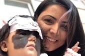 Brasileirinha com mancha rara no rosto passa por 1ª cirurgia