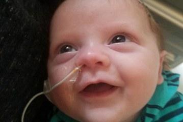 Família faz campanha em prol de bebê com problemas cardíacos em MA