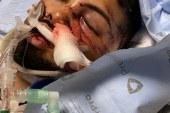 Brasileiro sofre acidente de trabalho grave em Maryland